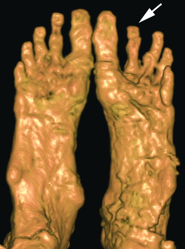 3D CT scan of Tutankhamun's feet showing the left foot deformity, from below (from Hawass & Saleem: Scanning the Pharaohs)